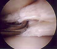 Lateral Meniscal Cyst and Horizontal Tear